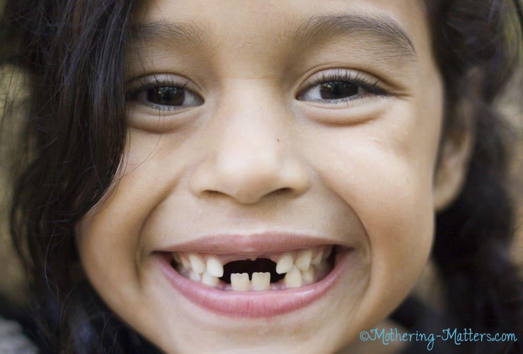 Wendy-missing-teeth-MM-1024x693
